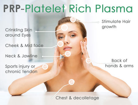 The vampire facial, also known as the platelet-rich plasma (PRP) facial